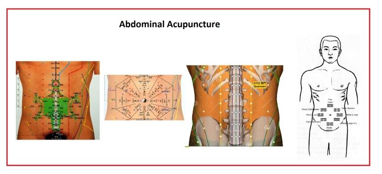 abdominal1.1